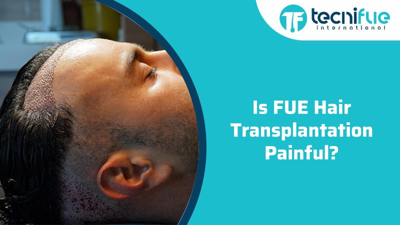 Is FUE Hair Transplantation Painful?