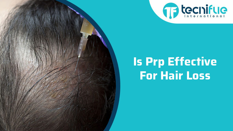 Is PRP Effective For Hair Loss?