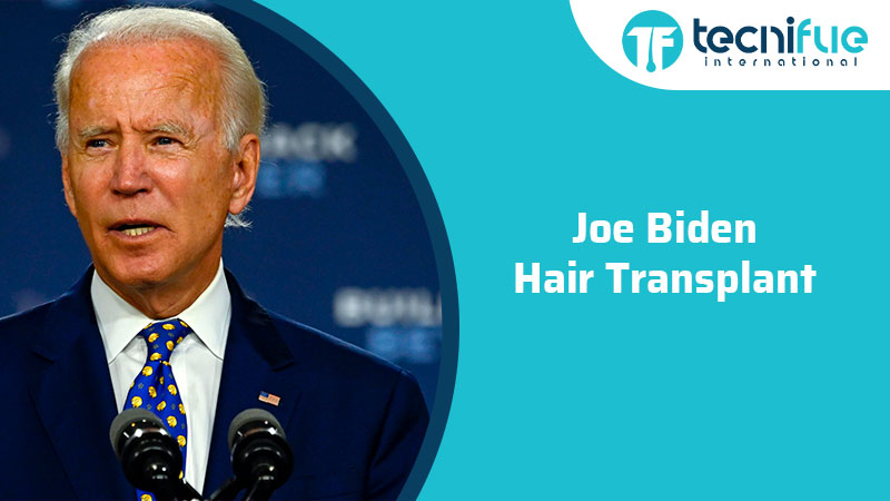 Joe Biden Hair Transplant, Joe Biden Hair Transplant