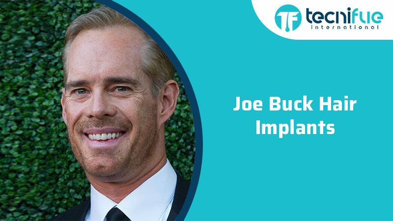 Joe Buck Hair Implants, Joe Buck Hair Implants