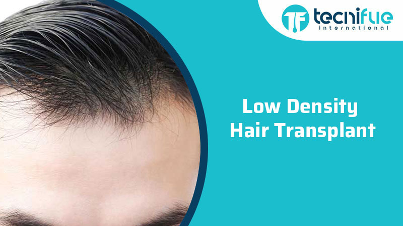 Low-Density Hair Transplant, Low-Density Hair Transplant