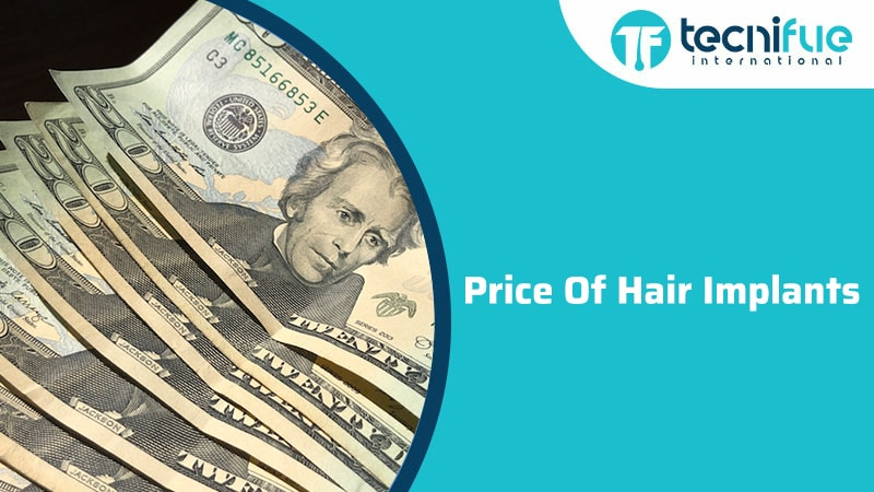 Price of Hair Implants