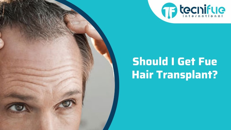 Should I get FUE Hair Transplant?, Should I get FUE Hair Transplant?