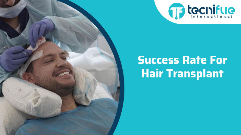 Success Rate For Hair Transplant