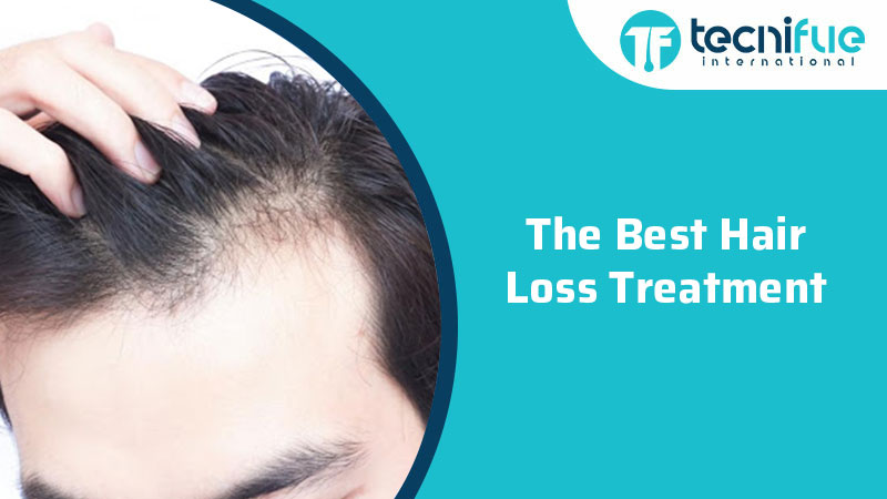 The Best Hair Loss Treatment, The Best Hair Loss Treatment