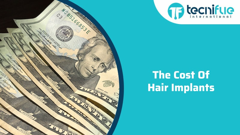 The Cost of Hair Implants