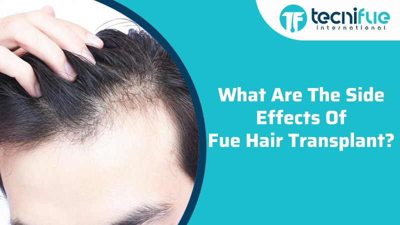 What Are The Side Effects Of FUE Hair Transplant?, What Are The Side Effects Of FUE Hair Transplant?