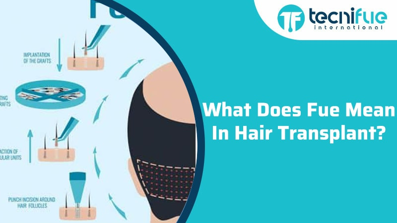 What Does FUE Mean in Hair Transplant?