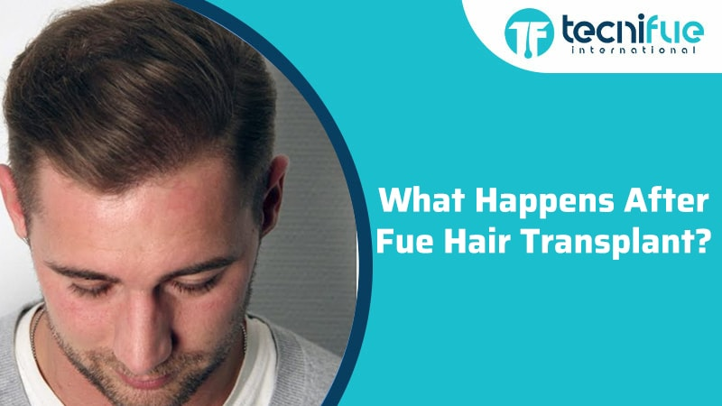 What Happens After FUE Hair Transplant?