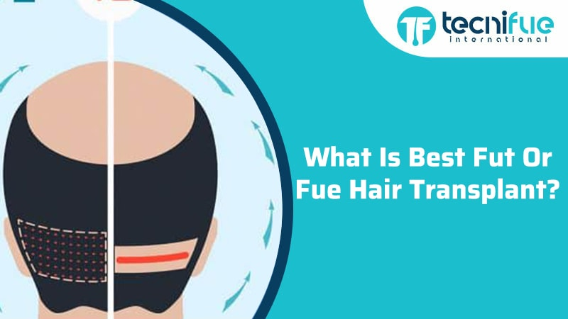 What Is The Best FUE or FUT Hair Transplant?, What Is The Best FUE or FUT Hair Transplant?