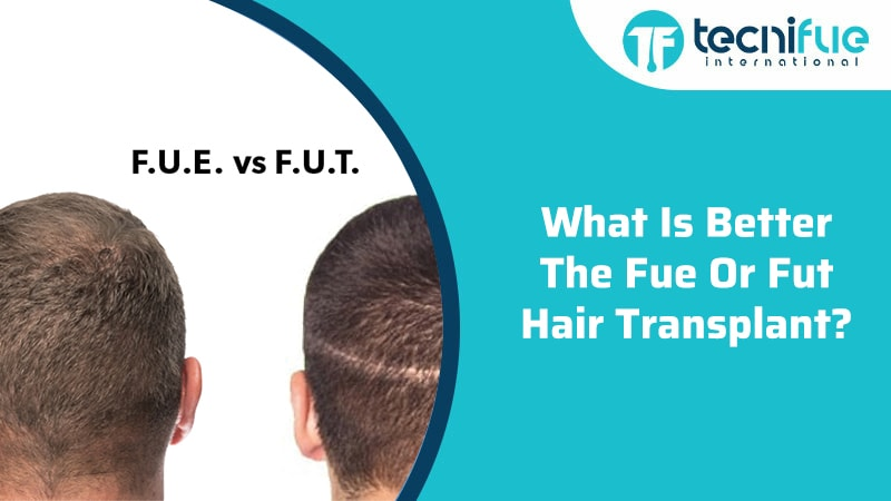 What Is Better The FUE Or FUT Hair Transplant?