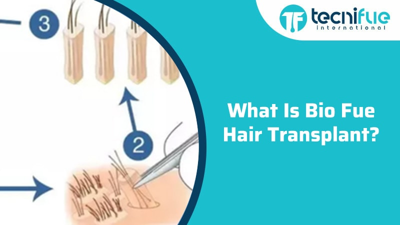 What Is Bio Fue Hair Transplant?