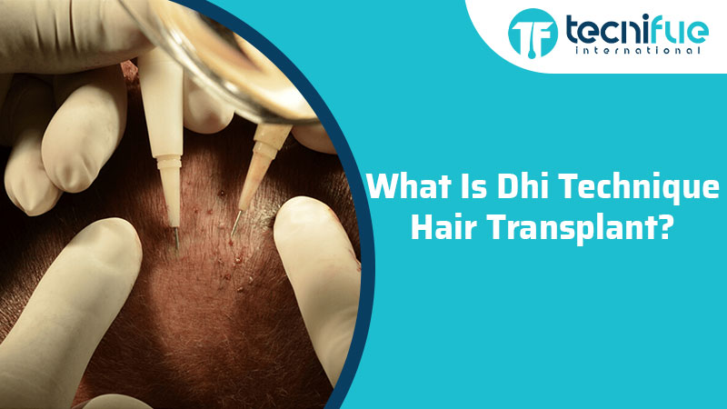 What Is DHI Hair Transplant Technique?, What Is DHI Hair Transplant Technique?