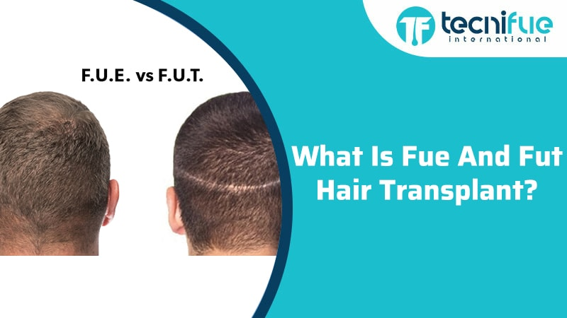 What Is A FUE And FUT Hair Transplant?