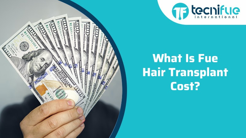 What Is FUE Hair Transplant Cost?, What Is FUE Hair Transplant Cost?