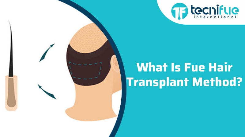 What Is FUE Hair Transplant Method?, What Is FUE Hair Transplant Method?
