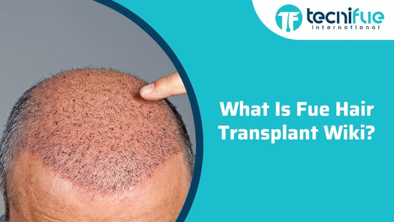 What Is Fue Hair Transplant Wiki?, What Is Fue Hair Transplant Wiki?