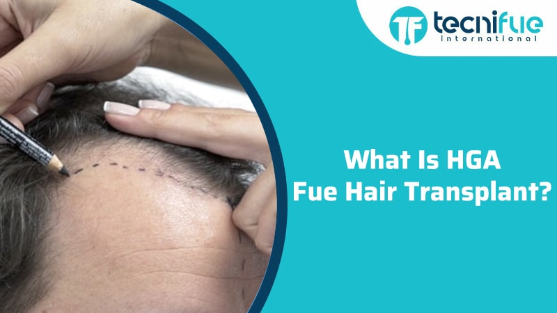 What Is HGA FUE Hair Transplant?