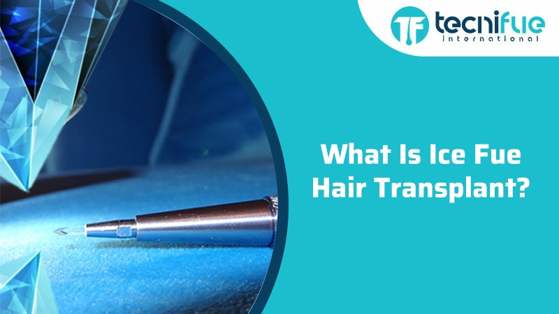 What Is Ice Fue Hair Transplant?