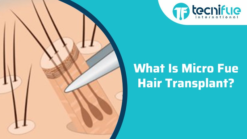 What Is Micro FUE Hair Transplant?, What Is Micro FUE Hair Transplant?