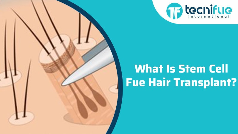 What Is Stem Cell FUE Hair Transplant?