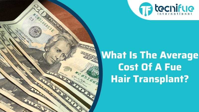What Is The Average Cost Of A Fue Hair Transplant?