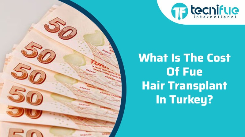What Is The Cost Of FUE Hair Transplant In Turkey?