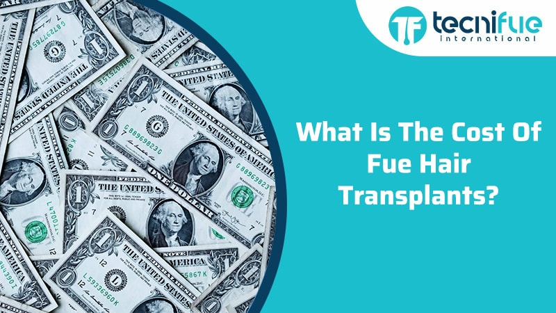 What Is The Cost Of FUE Hair Transplants?