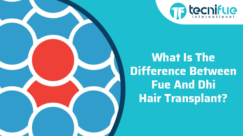What Is The Difference Between FUE and DHI Hair Transplant?, What Is The Difference Between FUE and DHI Hair Transplant?