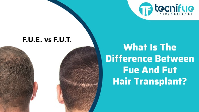 What Is The Difference Between FUE And FUT Hair Transplant?