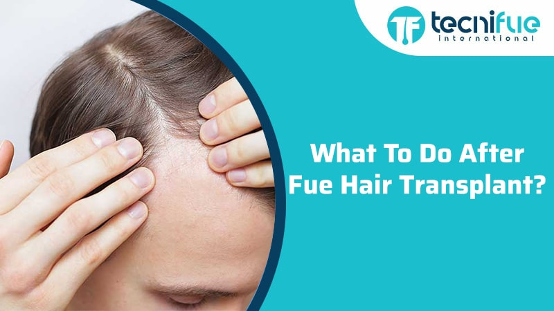 What To Do After FUE Hair Transplant?, What To Do After FUE Hair Transplant?