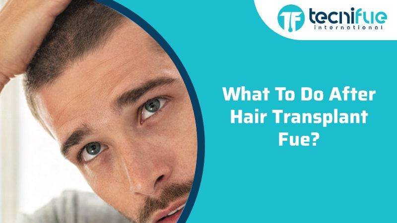 What To Do After Hair Transplant FUE?