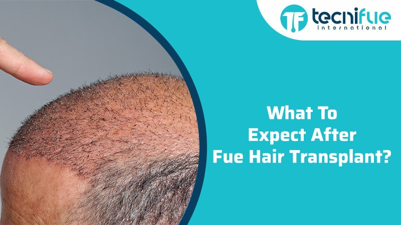 What To Expect After FUE Hair Transplant?, What To Expect After FUE Hair Transplant?
