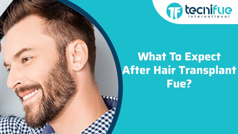 What To Expect After Hair Transplant FUE?, What To Expect After Hair Transplant FUE?