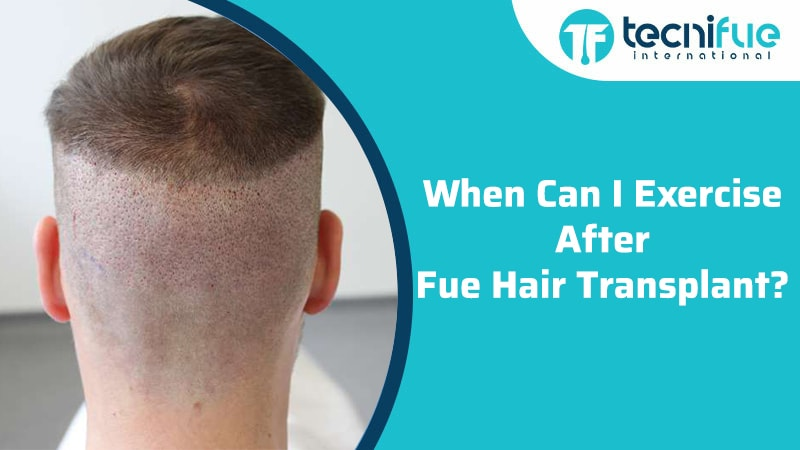 When Can I Exercise After FUE Hair Transplant?