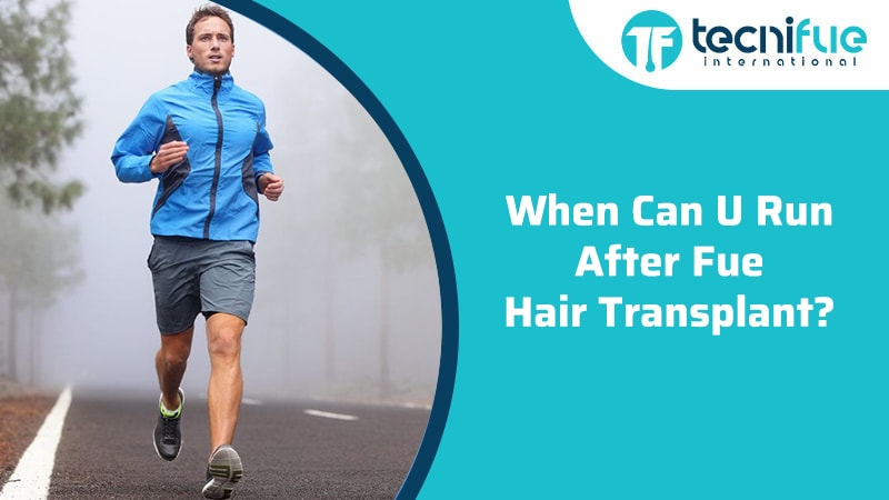 When Can I Run After FUE Hair Transplant?