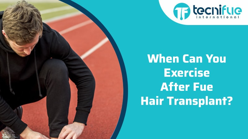 When Can You Exercise After FUE Hair Transplant?, When Can You Exercise After FUE Hair Transplant?