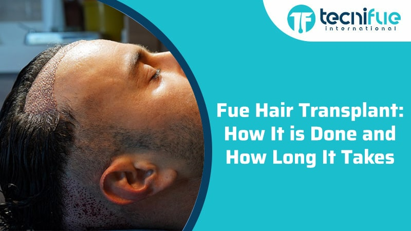 Fue Hair Transplant: How It is Done and How Long It Takes?, Fue Hair Transplant: How It is Done and How Long It Takes?
