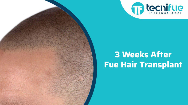 3 Weeks After Fue Hair Transplant, 3 Weeks After Fue Hair Transplant