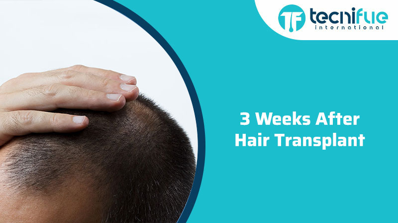 3 weeks after hair transplant, 3 Weeks After Hair Transplant