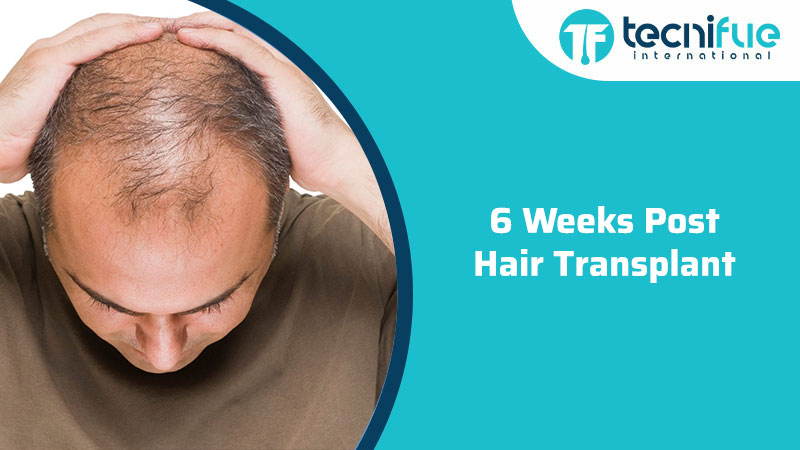 6 Weeks Post Hair Transplant, 6 Weeks Post Hair Transplant