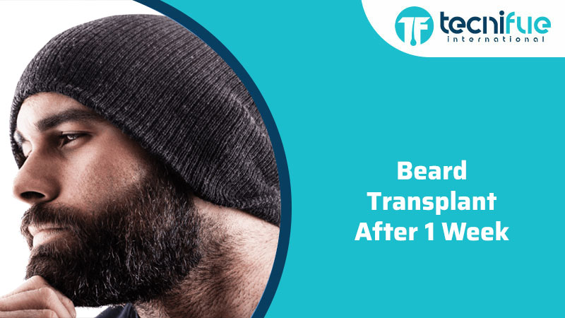 Beard Transplant After 1 Week, Beard Transplant After 1 Week