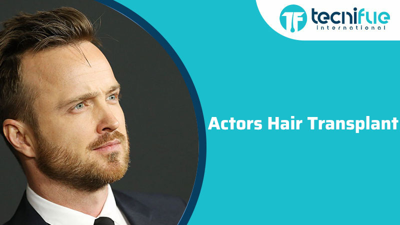 Actors Hair Transplant, Actors Hair Transplant