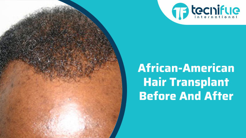 African American Hair Transplant Before And After