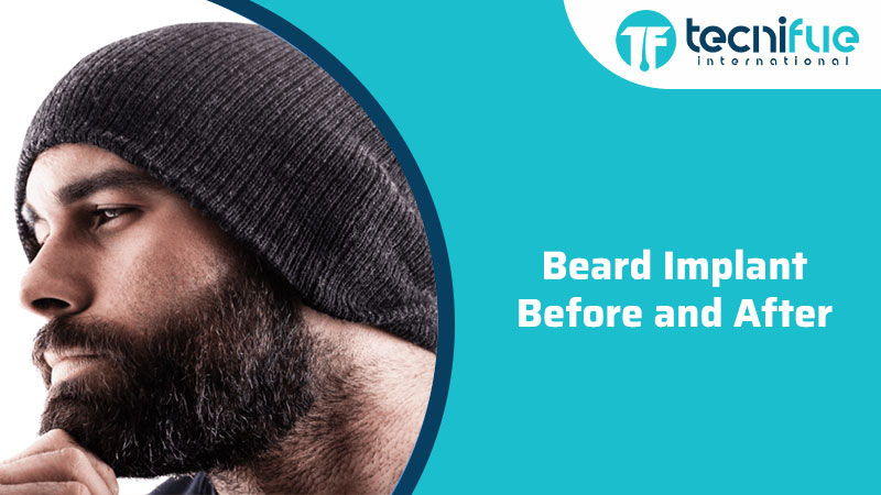 Beard Implant Before and After, Beard Implant Before and After