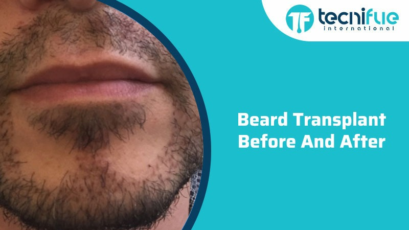 Beard Transplant Before And After, Beard Transplant Before And After
