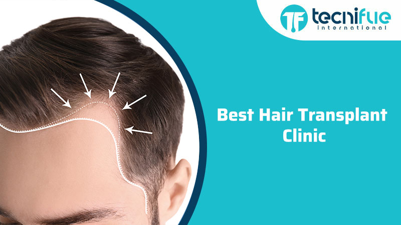 Best Hair Transplant Clinic, Best Hair Transplant Clinic
