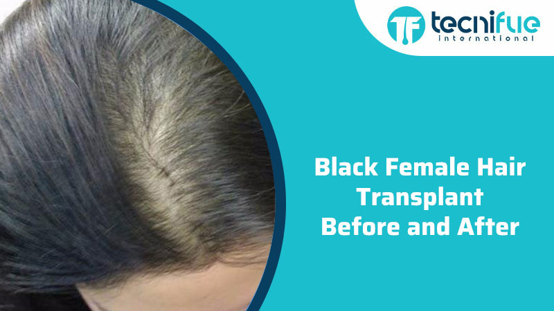 Black Female Hair Transplant Before And After, Black Female Hair Transplant Before And After