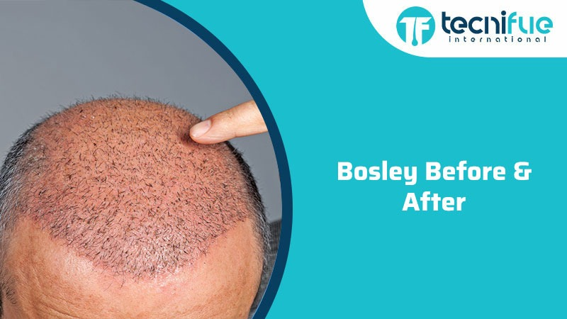 Bosley Before & After