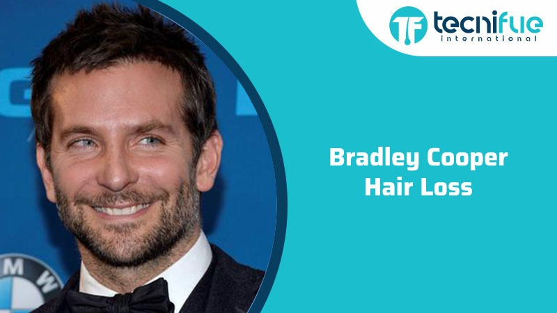 Bradley Cooper Hair Loss, Bradley Cooper Hair Loss